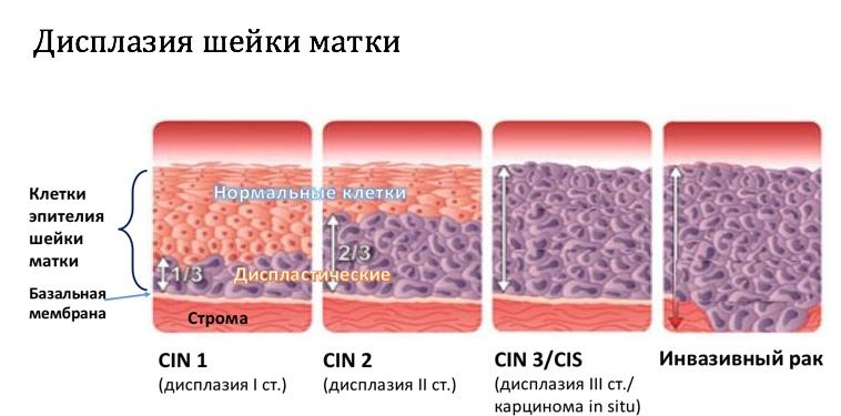 Прогрессирование дисплазии до стадии инвазивного рака