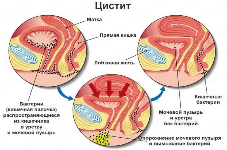 Урологические заболевания у женщин симптомы и лечение 3