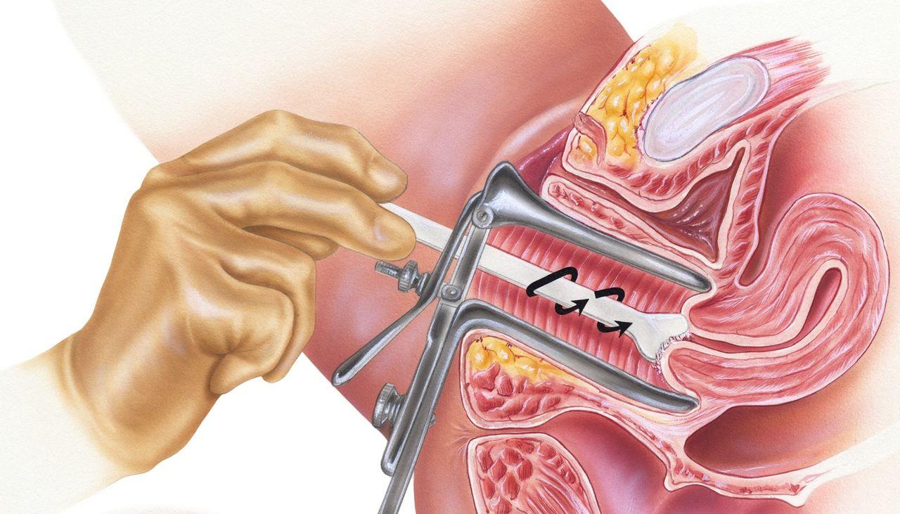 Плохой мазок в гинекологии причины