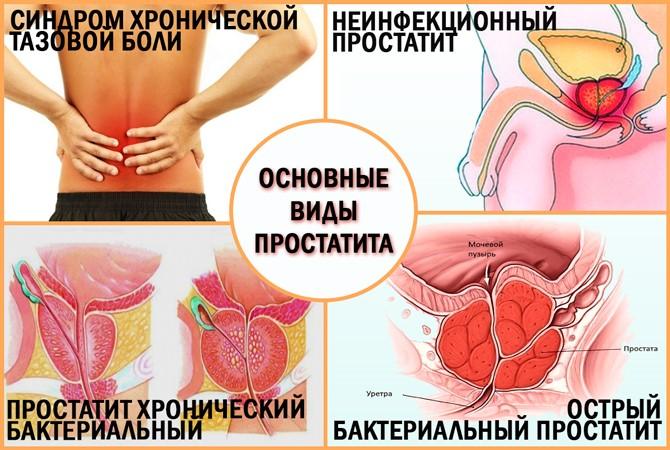 боль в заднем проходе при хроническом простатите